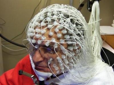 Наблюдаване на мозъчните вълни през скалпа