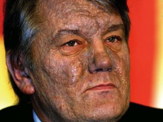 Виктор Юшченко и последиците от отровата