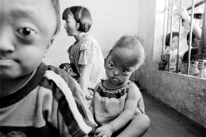 Децата във Виетнам продължават да се раждат и днес с увреждания заради Монсанто.